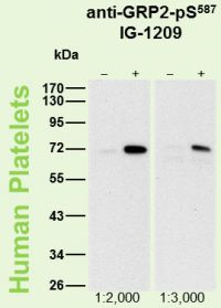 <p>Human platelets (5 μg protein/lane) were either not stimulated (−) or were incubated with 5 μM Forskolin for 1 min (+). Blot membranes were probed with the indicated dilutions of antibody IG-1209.</p>