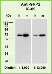 <p>Blot membranes with samples of human (h) and mouse (m) platelets (5 μg protein per lane, each) were probed with antibody IG-09, diluted as indicated.</p>